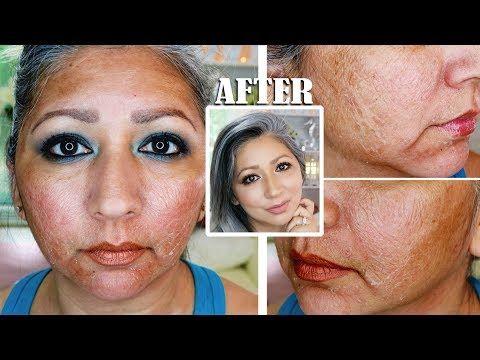 Home chemical facial peel