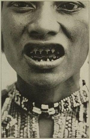 Bagobo women teeth sharpening and blackening