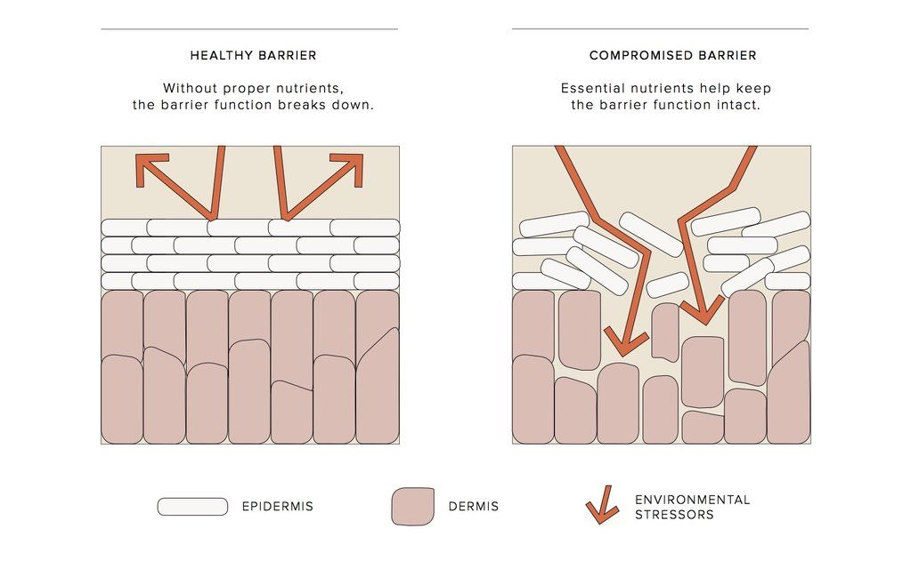 Apkah Penyebab Kulit Jerawatan Adalah Skin Barier