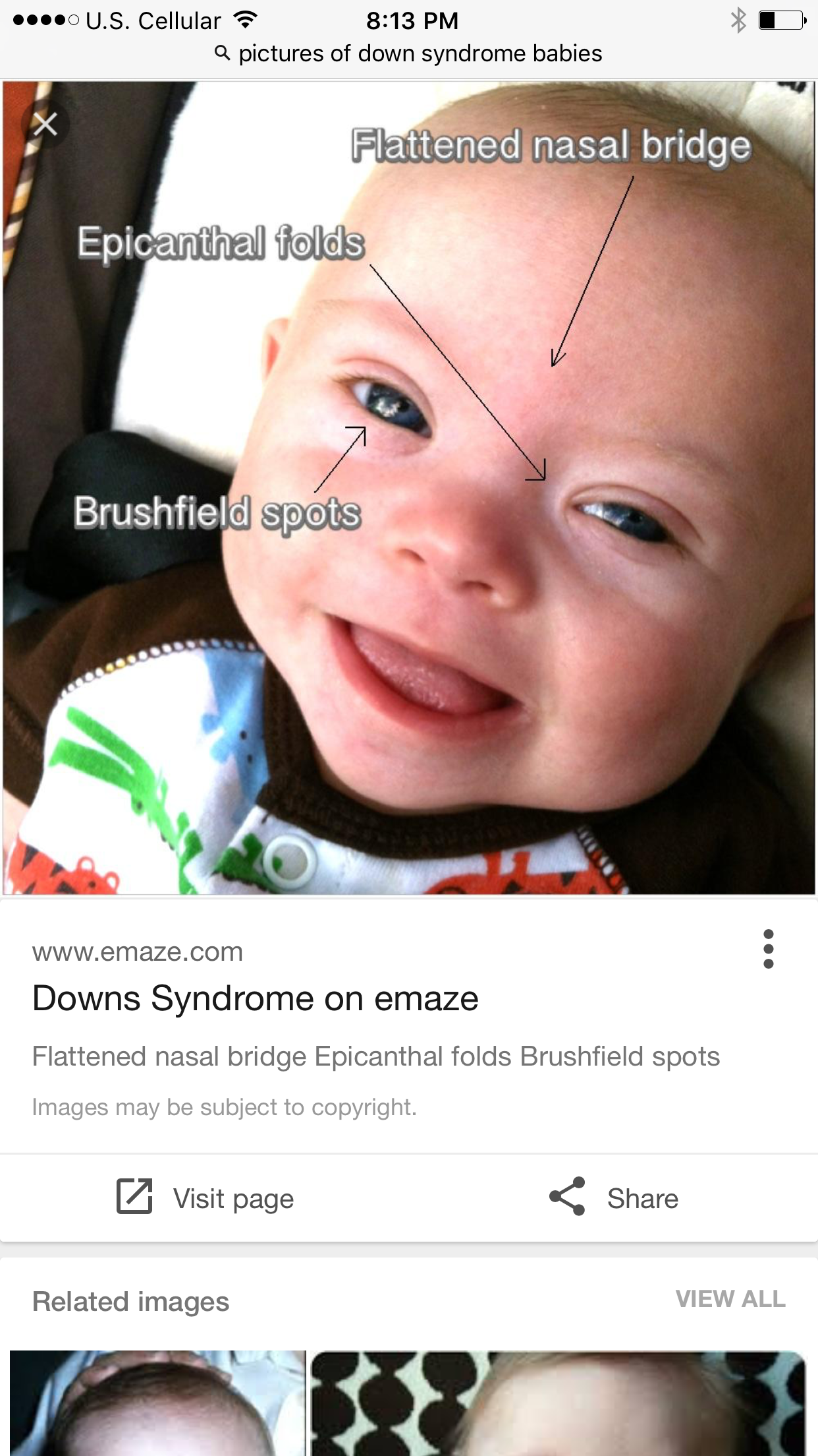 A Childs View D is for Down Syndrome