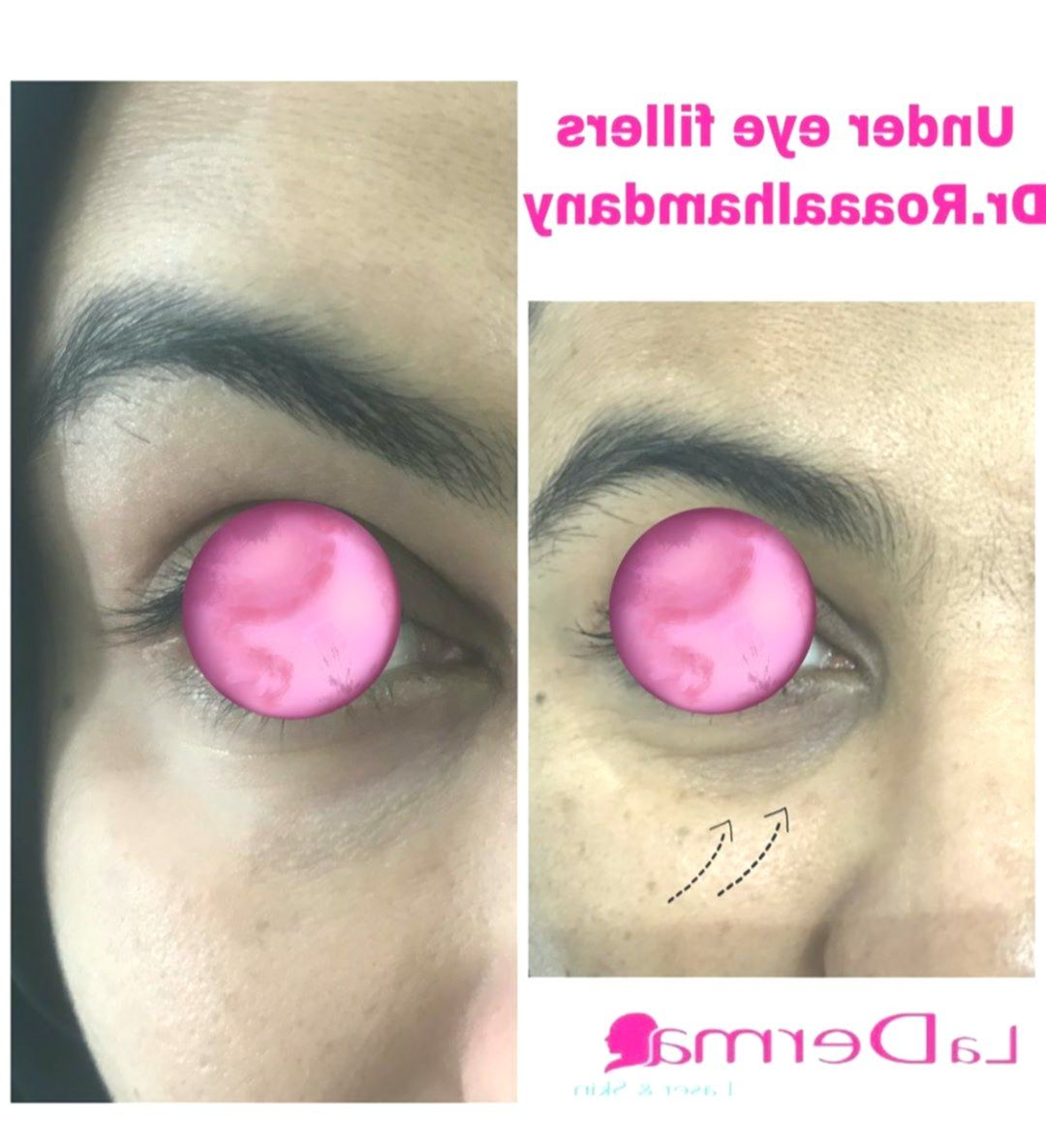 فيلر تحت العين Under Eye Filler Dr Roaa Alhamdany Moh 205 2019 Under Eye Fillers Undereye Mesotherapy