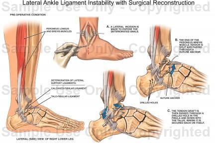 Lateral Ligament Reconstruction Ankle Google Search Ankles Under
