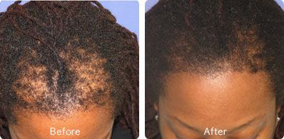 Before and After Photo of Hair Transplantation