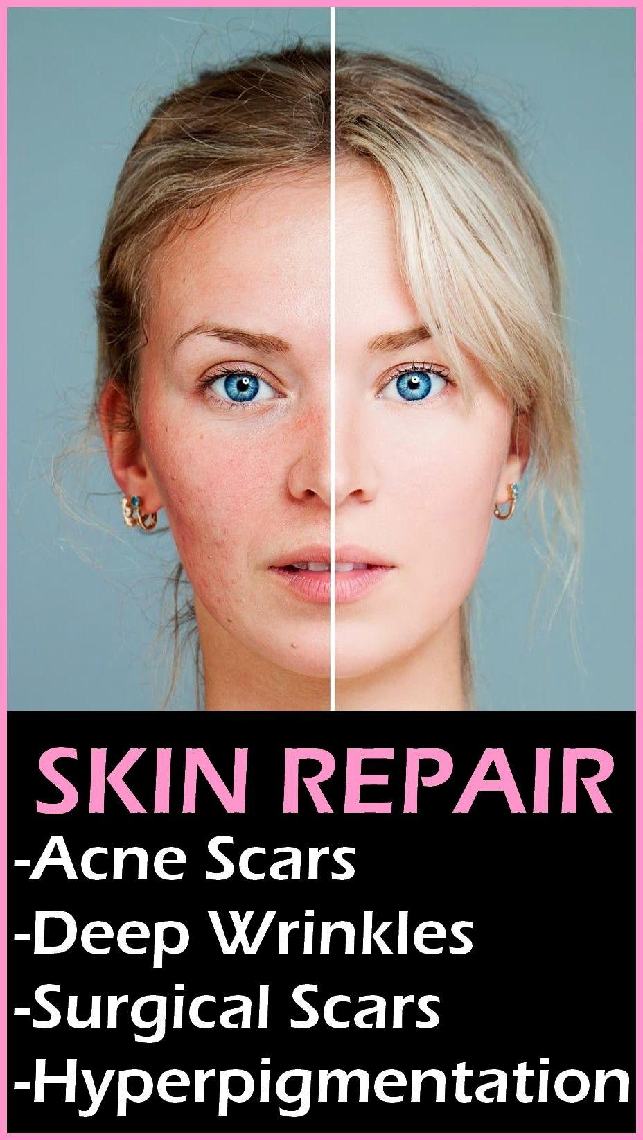 Pin by Elisha Moreno on beauty skin in 2020 Skin repair