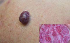 Hemangioma – Sintomas, Causas e Tratamentos