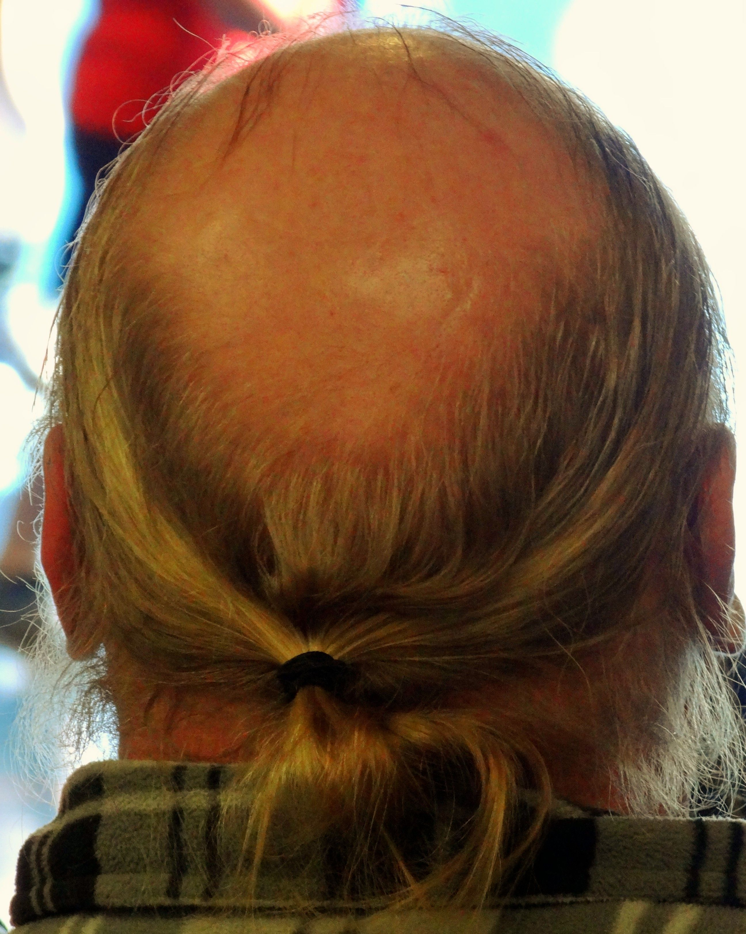 Bald Guy With Ponytail But Why Guys With Ponytails Funny Family Photos Bald Men