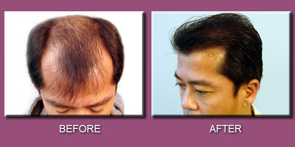 Image result for What to choose between a hair transplant and treatments for hair loss