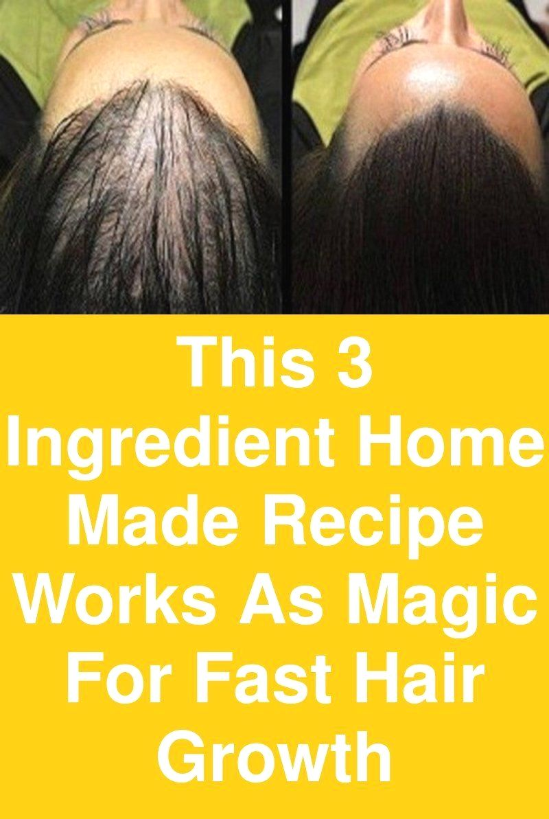 egg and castor oil hair treatment #water #your #growth #long #how #natural #4c