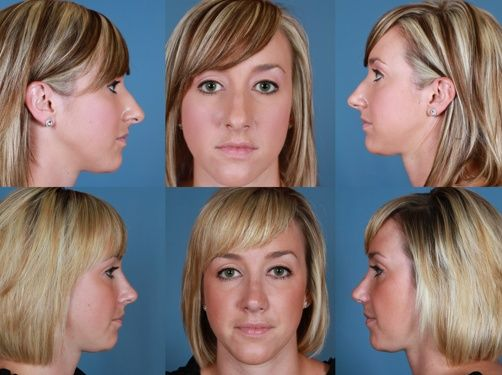 Rhinoplasty Before and After, Right Profile, Left Profile sample - jobs that are left