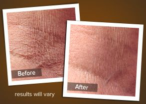 Crepey Skin Treament For Visibly Aging Crepe Paper Skin Crepe Skin Crepey Skin Treatment Crepey Skin
