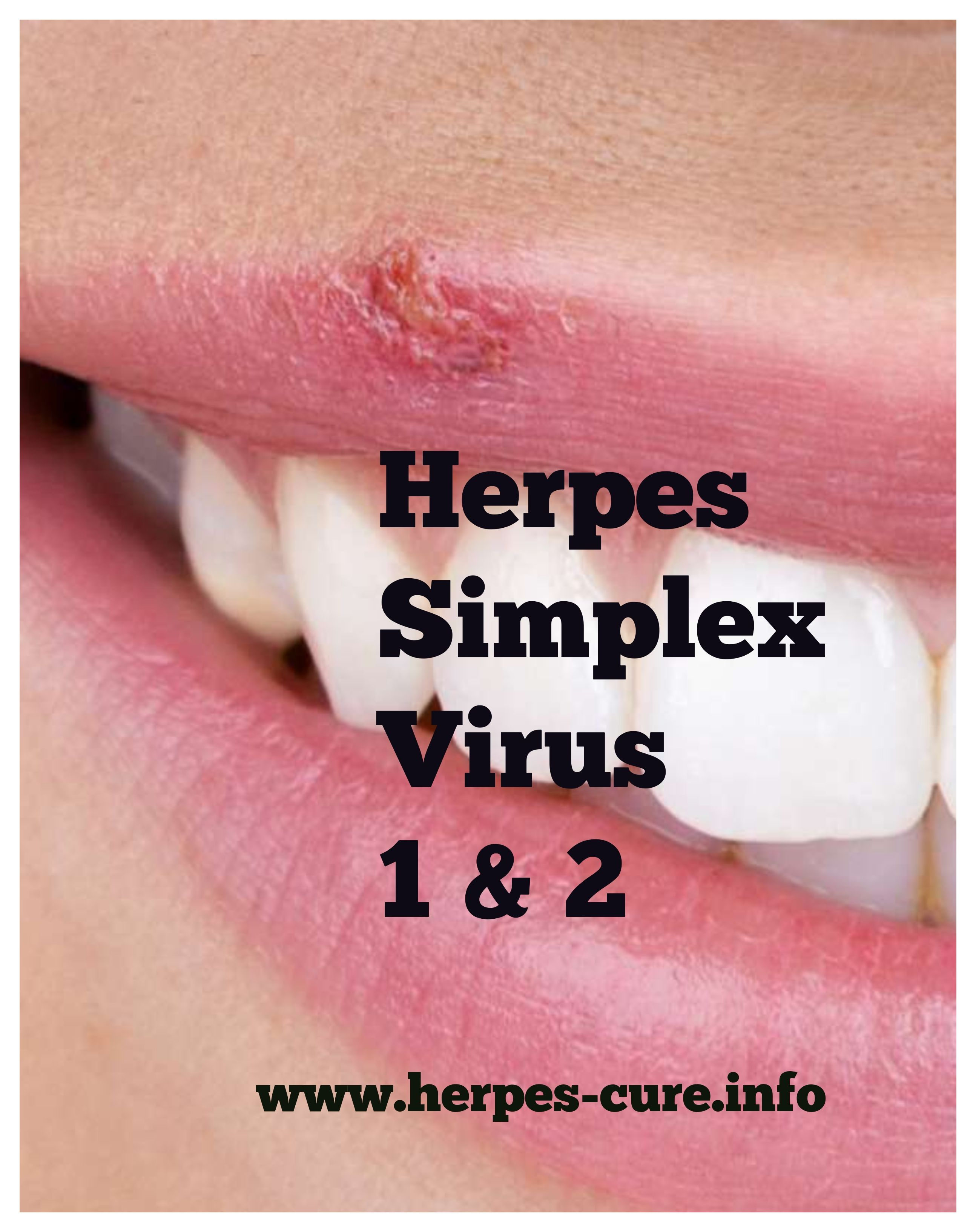 when is genital herpes no longer contagious