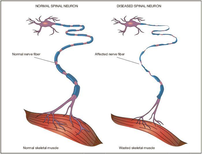 Spinal Neuron Comparison Wonderbody Pinterest