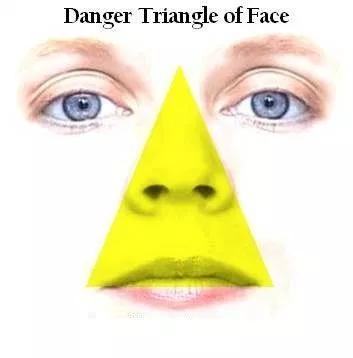 مثلث الموت في الوجه تعر ف بالتفصيل كل شيء عنه وعن مدى خطورته Pimples On Forehead At Home Face Mask Puffy Eyes
