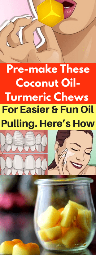 Pre-Make These Coconut Oil-Turmeric Chews For Easier & Fun Oil Pulling. Here's How!!!  #beautytips...