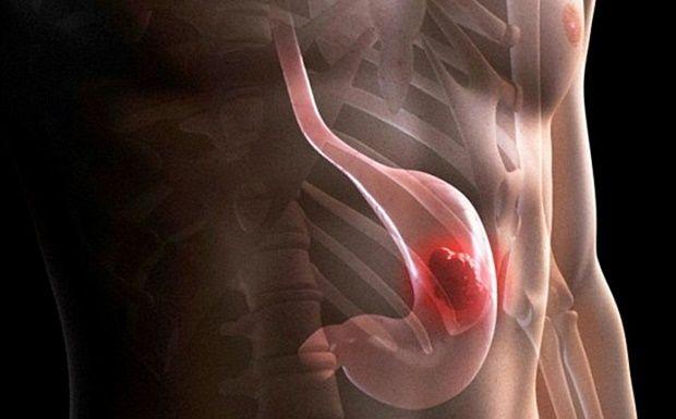 Présent DANS LA MAISON: Cette nourriture est la meilleure prévention pour le cancer de l'estomac! - http://www.01news.fr/present-dans-la-maison-cette-nourriture-est-la-meilleure-prevention-pour-le-cancer-de-lestomac/ #Cancer, #Nourriture, #Prévention, #PréventionCancer