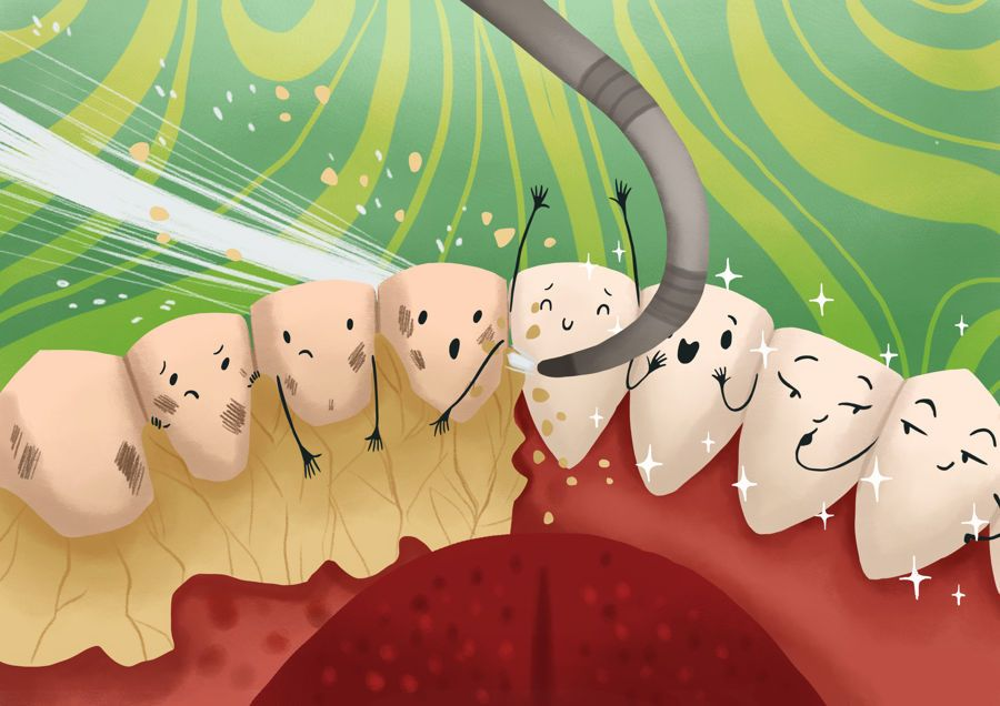 How to remove plaque from teeth home professional