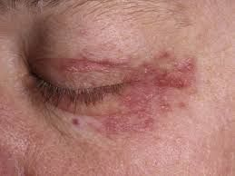 Rash around eyes   Why do I have it? Food allergy, contact