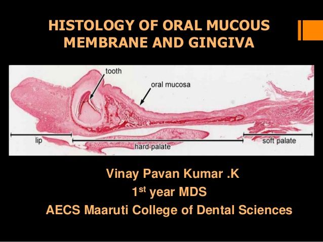 Histology of oral mucous membrane and gingiva | Anatomy Atlas ...