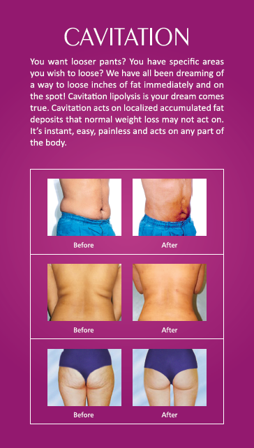 Cavitation @ Glow Clinics | Non Surgical Slimming Solutions