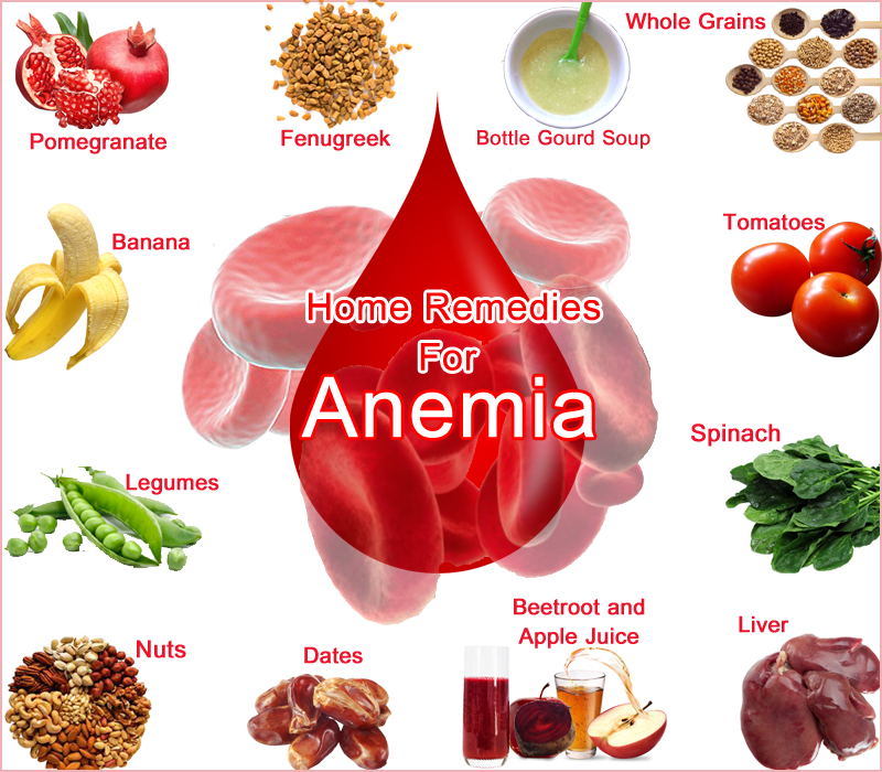 How To Treat Iron Deficiency Anemia Naturally