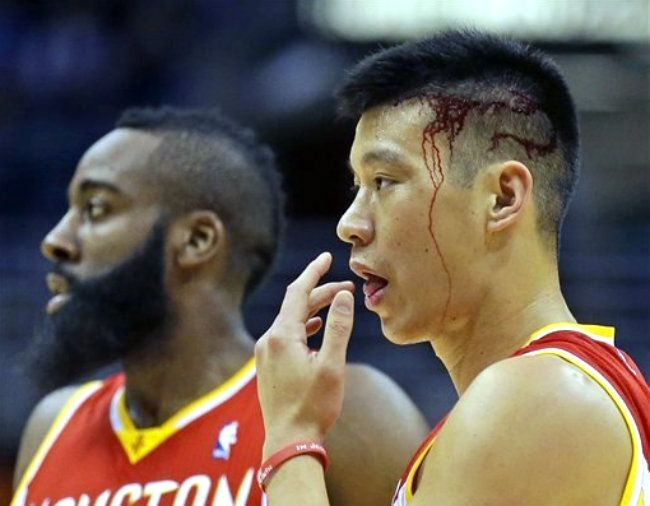 Why do some people like tasting their own blood…? @Jlin7 got
