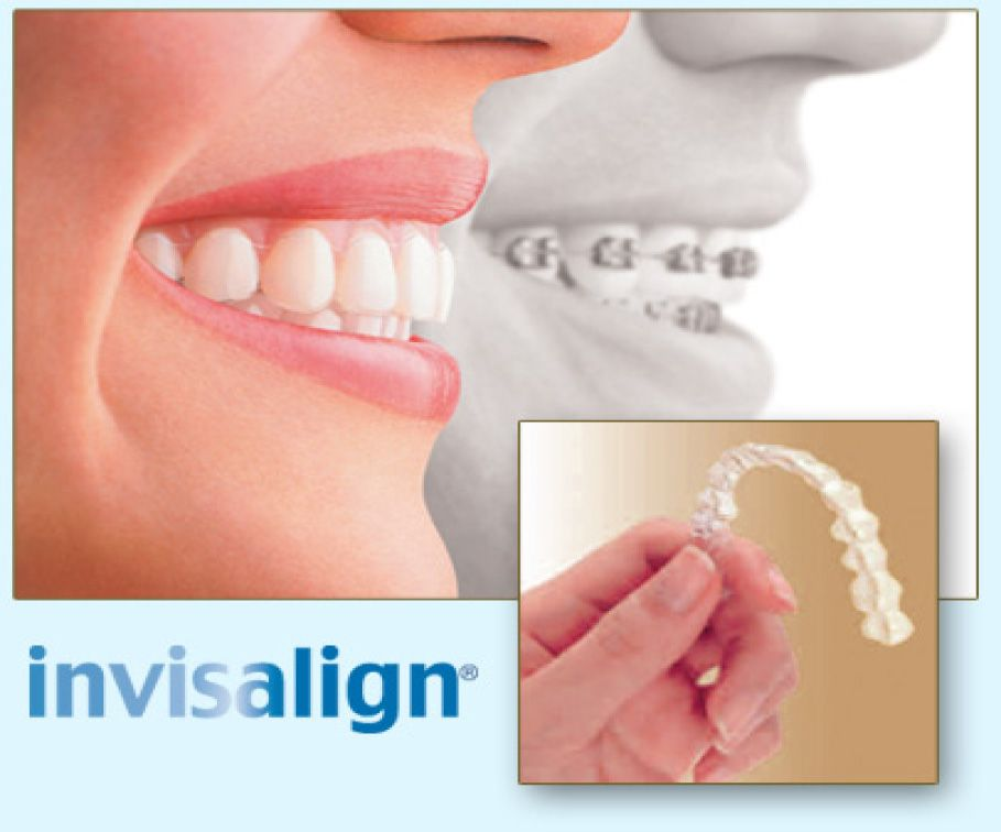 Get the best invasilign braces at affordable rate at