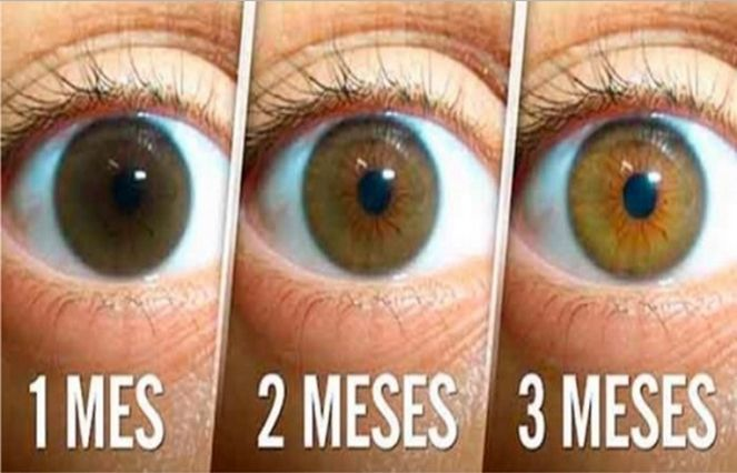 AVOID SURGERY! VERY SIMPLE NATURAL REMEDY THAT REDUCES CATARACT, IMPROVES THE VISION AND HELPS CLEAR THE EYES!.