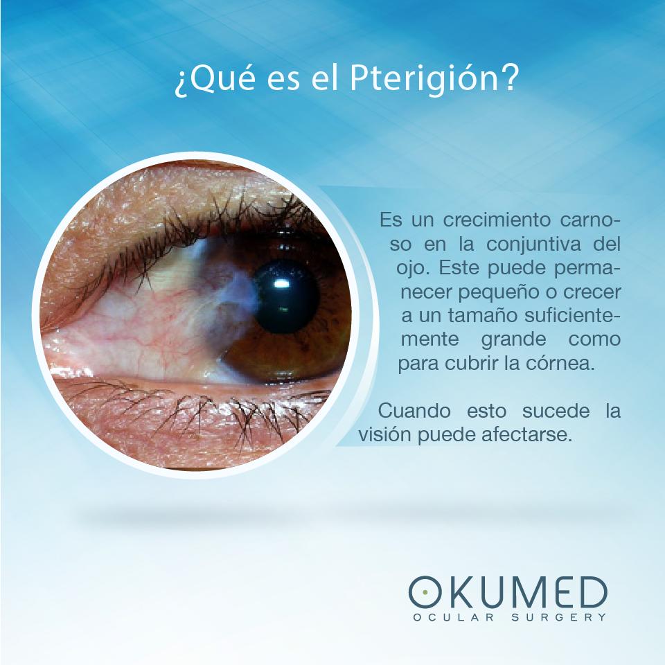 terigio ocular sintomas de diabetes