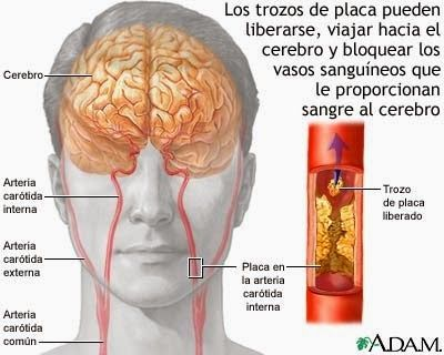 La estimulación eléctrica ayuda a los pacientes con accidente ...