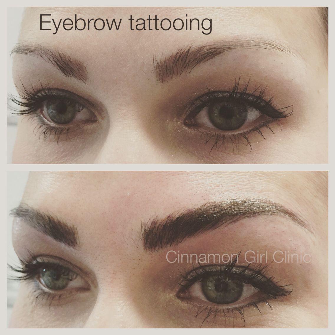 Eyebrow tattooing wwwcinnamongirlclinicca eyebrow