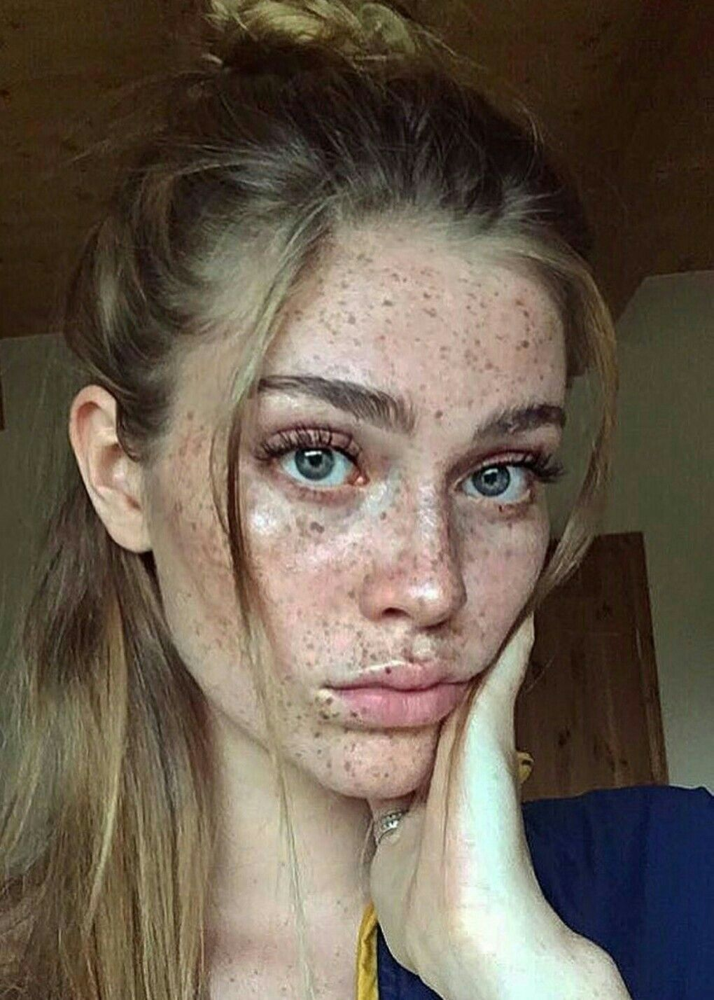 Pin by Shannae McIntosh on •Beauty• Beautiful freckles