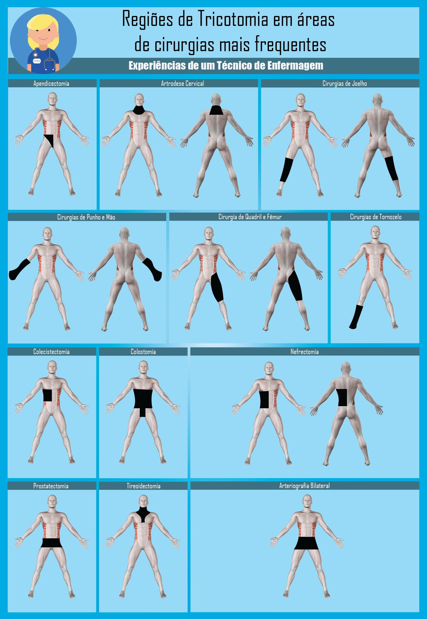Tricotomia | salud | Pinterest | Medicina, Anatomía y Enfermería