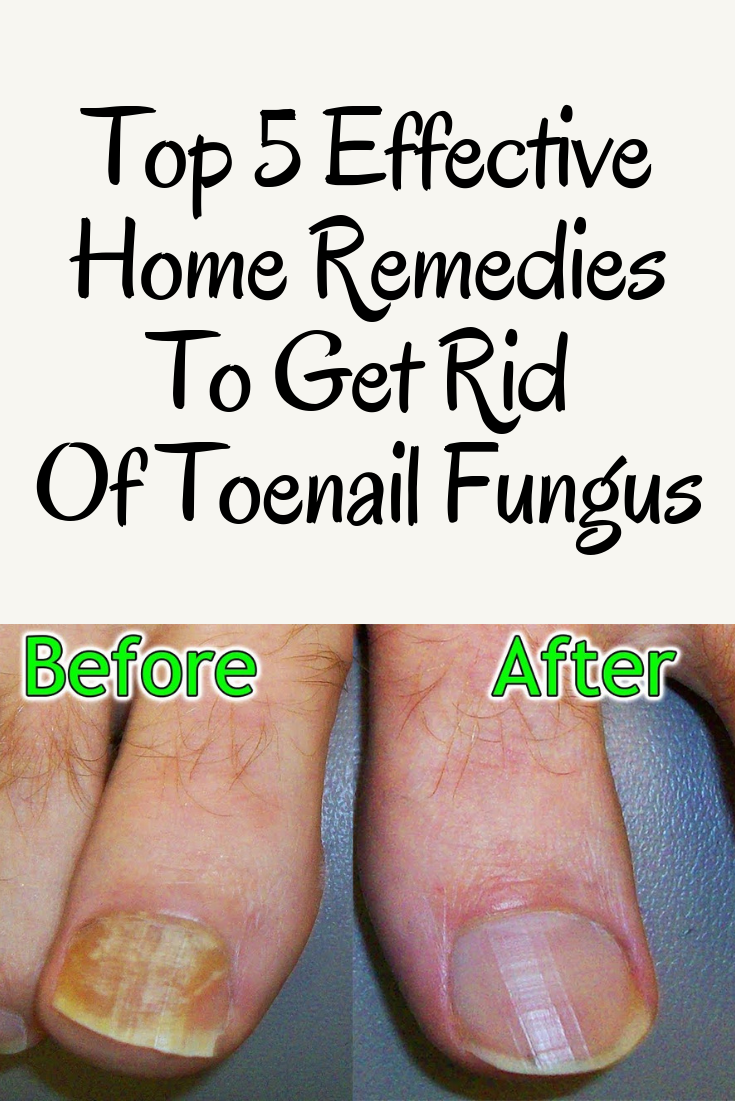 Toenail Fungus a very common pathology, especially in people over 40 ...