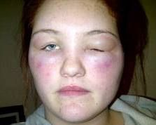 Allergic Reaction To Hair Dye Symptoms Treatment Hypoallergenic Testing How Treat For Allergy