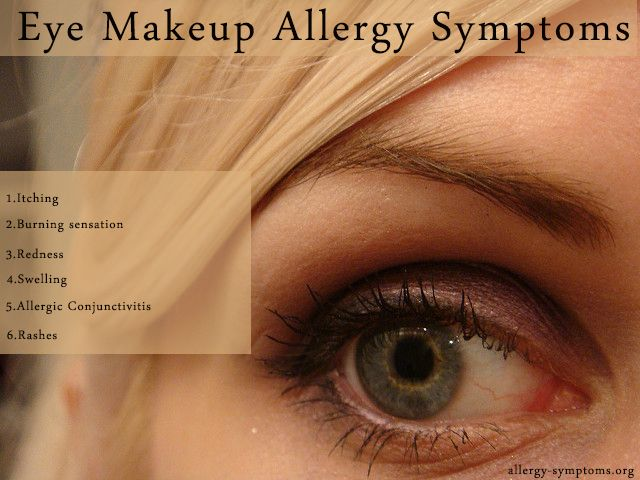 Eye Makeup Allergy Symptoms You Aren T For A Party Without