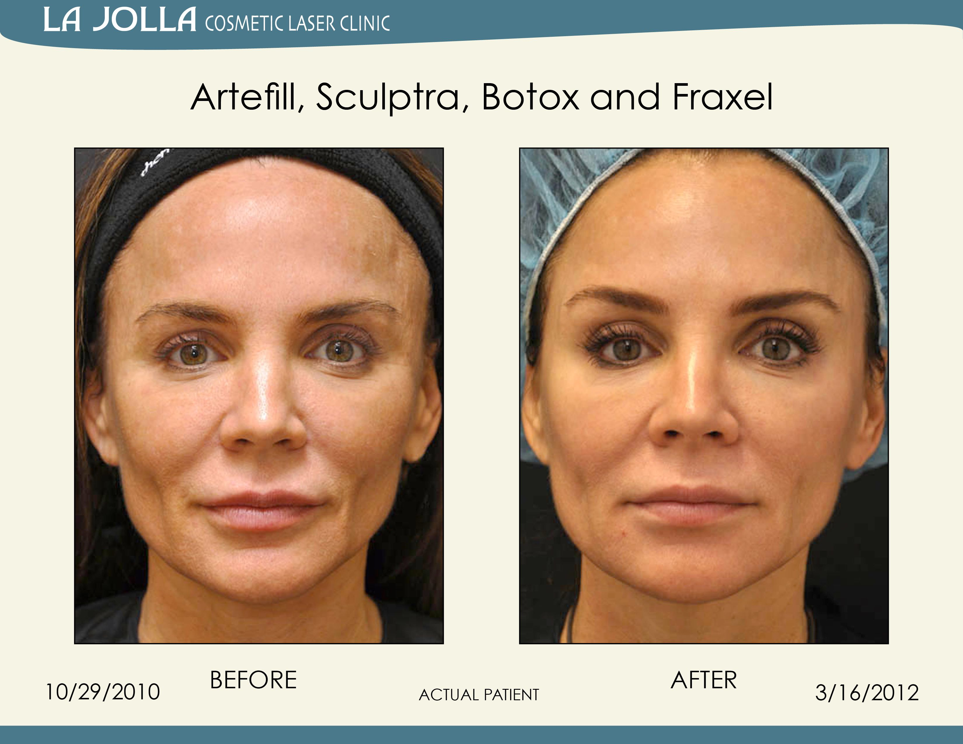 Patient Treated With Artefill Sculptra Botox And Fraxel