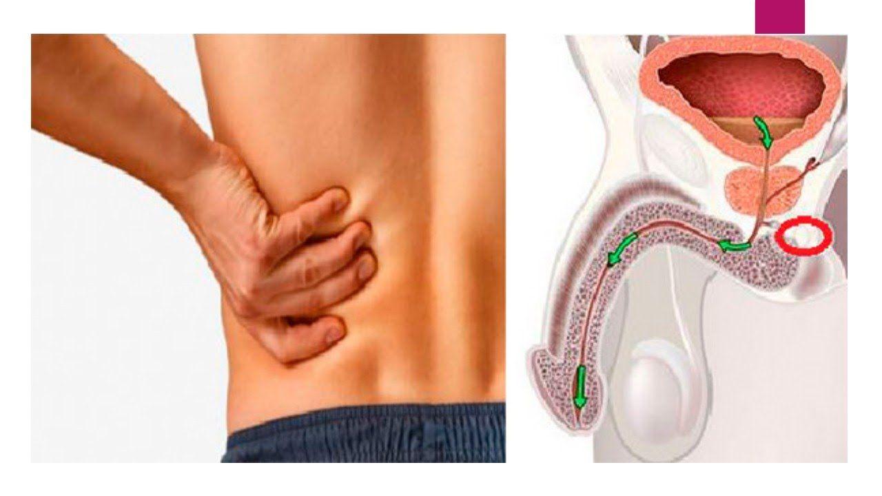 cual es la sintoma de la prostata