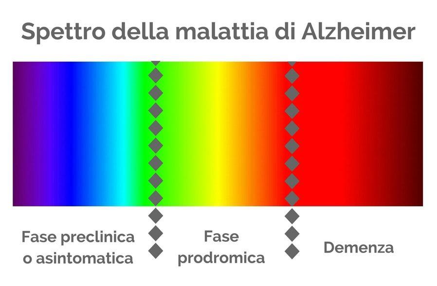 Fasi della malattia di Alzheimer