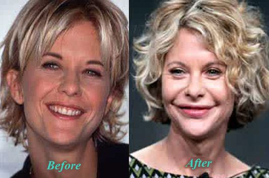Pin On Nip And Tuck Famous Cosmetic Surgeries Photoshop