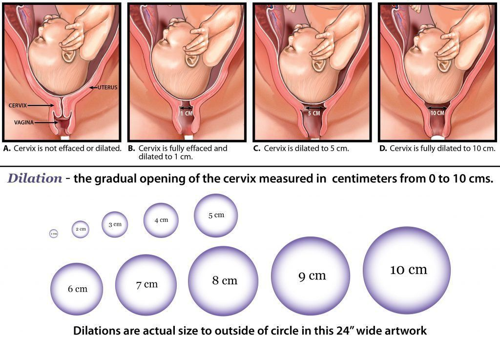 during penile dilation penetration Cervix