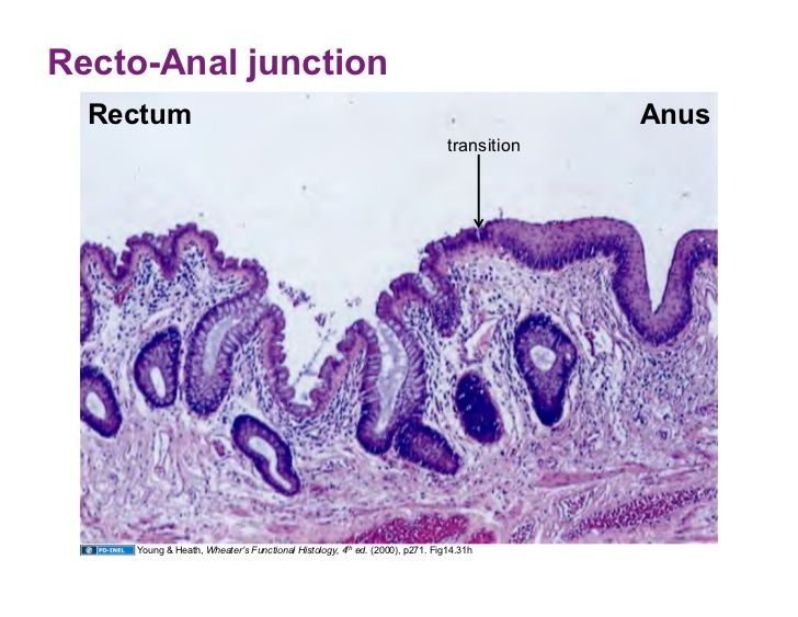 Anal rectal junction