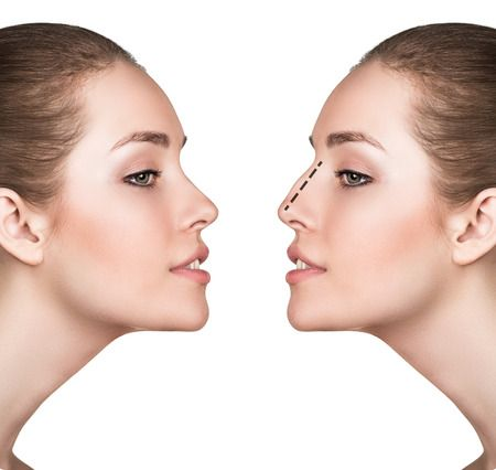 Well! What misconceptions facial fillers