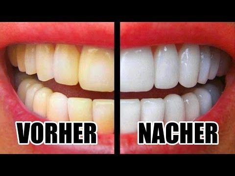 Weiße Zähne In 10 Minuten Gelbe Zähne Aufhellen Mit Diesen