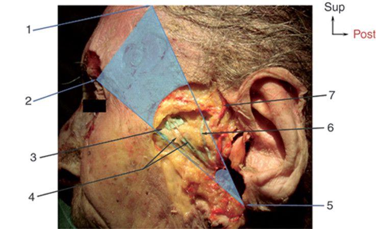 Imagen a tamaño completo de \'Anatomía del nervio facial\' | N. FACIAL ...