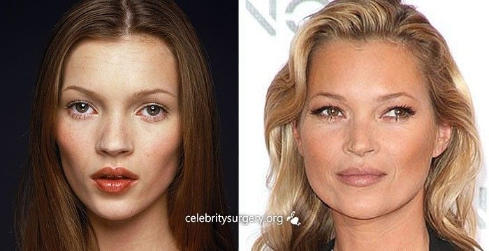 Celebrity Nose Jobs - Starplasticsurgerypictures.com