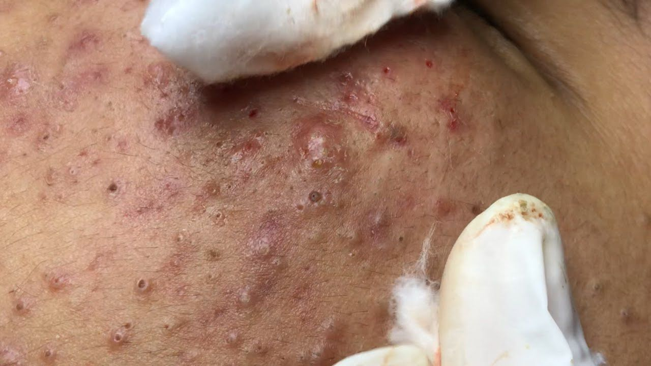 Suri Popper 19: AWSOME BLACKHEADS POPPING | PART 3
