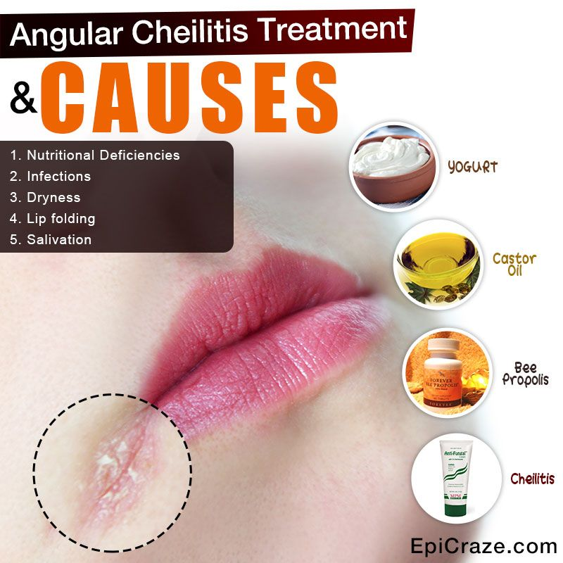 What is Angular Cheilitis? Angular cheilitis is also known