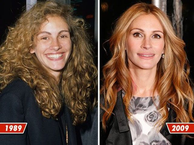 While it's no surprise that many celebrities have a few nips, tucks and enhancements to their bodies sometimes it can be difficult to tell unless you have visual proof. Check out these before and after pictures to see clear evidence of celebrities that went under the knife.   Julia Roberts