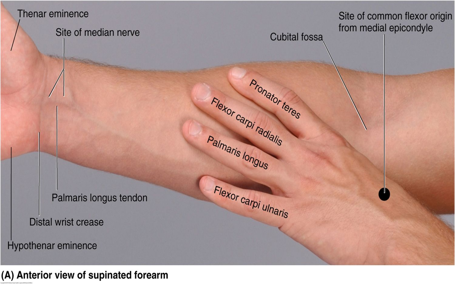 Mnemonics For Muscles Of Forearm Forearm Muscle Mnemonics - Anatomy ...
