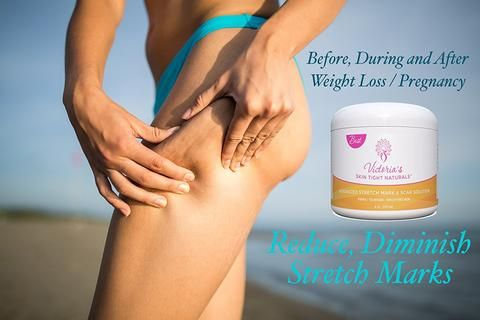 Stretch Marks Removal Cream Prevent is part of Stretch marks, Best stretch mark removal, Nose pores, Improve skin appearance, Skin firming, Stretch mark removal cream - Remover  Perfect for Women   Pregnancy Safe with Pure and Natural Ingredients helps prevent pregnancy stretch marks and scar   Remove and reduce the appearance of new and old scars and stretch marks while you lose weight  Dramatically Reduce the appearance of stretch marks and Scars  Pregnancy Safe  Perfect for use before, during, and after pregnancy  Multiple moisturizing ingredients  Shea Butter Vitamin E  Cocoa Butter Vitamin CAntiOxidants  Improves skin elasticity to prevent future stretch marks and scars ORDER YOUR PERSONAL SUPPLY TODAY  and start feeling and seeing amazing benefits to your skin and body! Natural, GMO Free, Cruelty Free, Made in USA in Recyclable container  Designed to be healthy for you and our planet!